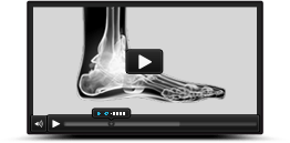 Multimedia Educatoin Videos Aaron M. O,Brien, MD - Orthopedic Foot & Ankle Surgeon